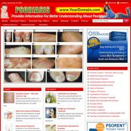 psoriasis-plr-website-cover  Psoriasis PLR Website – Adsense and Clickbank psoriasis plr website cover 190x190